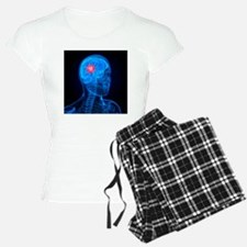 Brain cancer, artwork - Pajamas