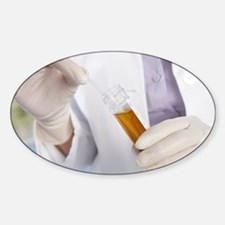 Urine sample analysis - Decal