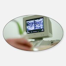 Pregnancy ultrasound - Sticker (Oval)