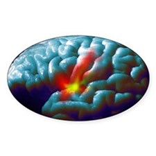 Parkinson's disease - Decal