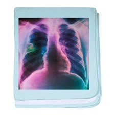 Lung abscess, X-ray - Baby Blanket