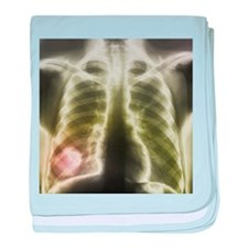 Pulmonary tapeworm cysts, X-ray - Baby Blanket