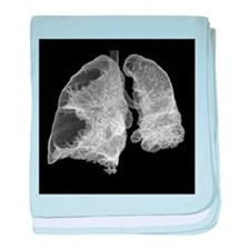 Emphysema of the lungs, CT scan - Baby Blanket