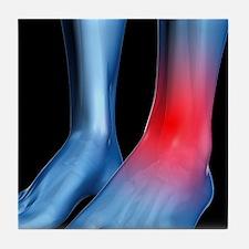 Ankle pain, conceptual artwork - Tile Coaster