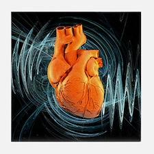 Heartbeat, conceptual artwork - Tile Coaster