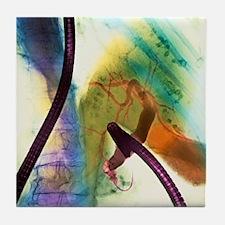 ng endoscopy - Tile Coaster