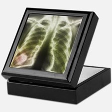 Pulmonary tapeworm cysts, X-ray - Keepsake Box