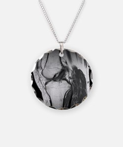 tear, CT scan - Necklace
