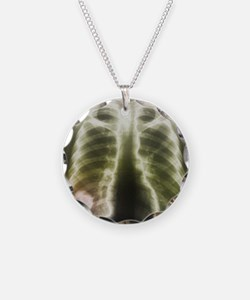 X-ray - Necklace