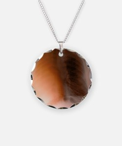 Lung cancer, X-ray - Necklace Circle Charm