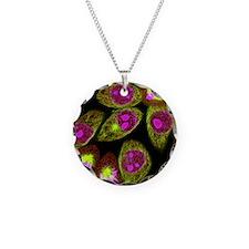 Mitosis, light micrograph - Necklace