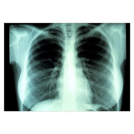 Lungs, X-ray - 3.5