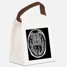 Alcoholic dementia, MRI scan - Canvas Lunch Bag