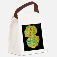 Microcystis blue-green alga - Canvas Lunch Bag