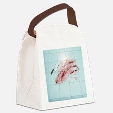 Fear of surgery - Canvas Lunch Bag