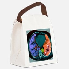 Lung cancer, CT scan - Canvas Lunch Bag