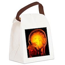 Brain anatomy, MRI scan - Canvas Lunch Bag