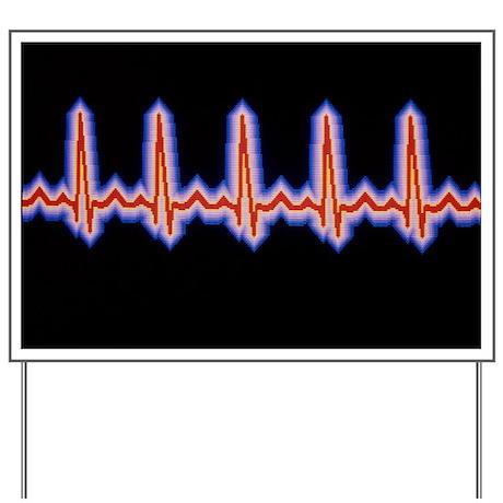 Heartbeat trace - Yard Sign