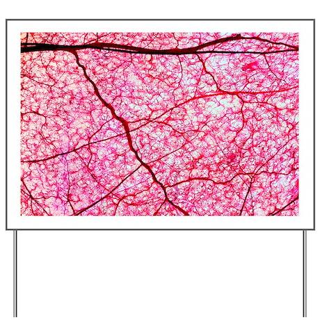 Colon blood vessels, light micrograph - Yard Sign