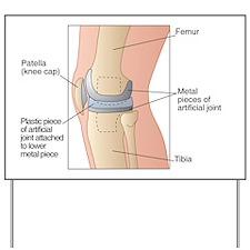 Knee replacement, artwork - Yard Sign
