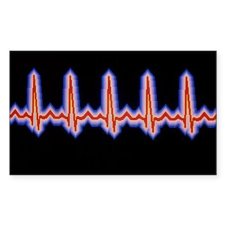 Heartbeat trace - Sticker (Rectangle)