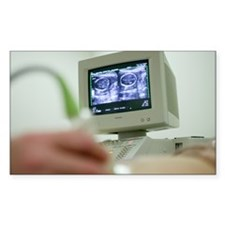 Pregnancy ultrasound - Decal