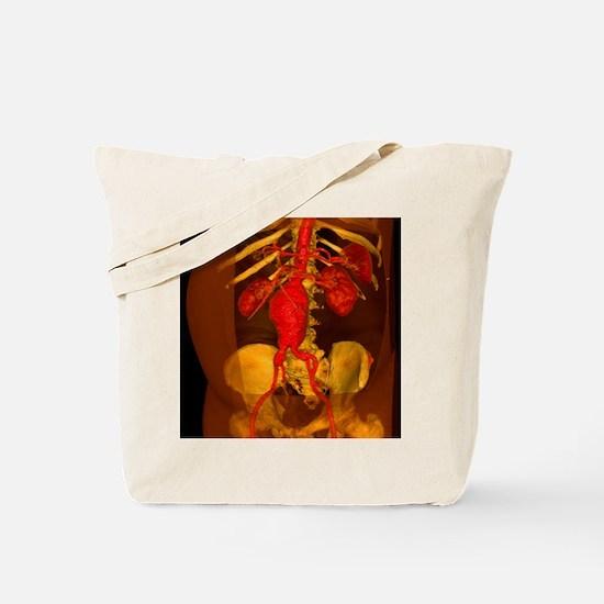 Aortic aneurysm, 3-D CT scan - Tote Bag