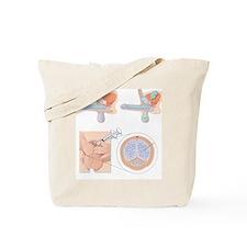 Impotence treatments, artwork - Tote Bag