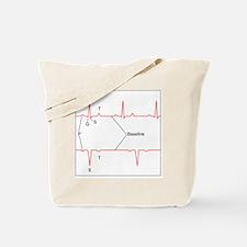 ECG of a normal heart rate, artwork - Tote Bag