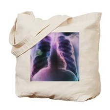 Lung abscess, X-ray - Tote Bag
