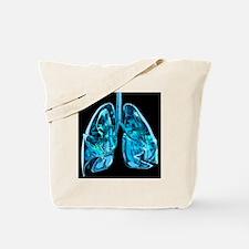 Lungs, artwork - Tote Bag