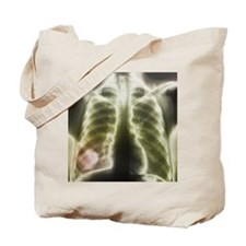 Pulmonary tapeworm cysts, X-ray - Tote Bag