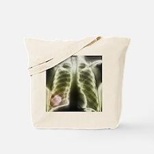 Pulmonary tapeworm cysts, X-ray - Tote Bag