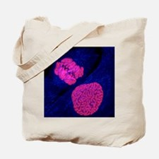 Breast cancer cells - Tote Bag
