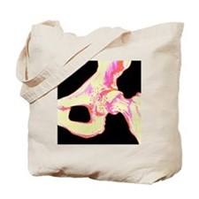Artwork of hip joint in osteoporosis - Tote Bag