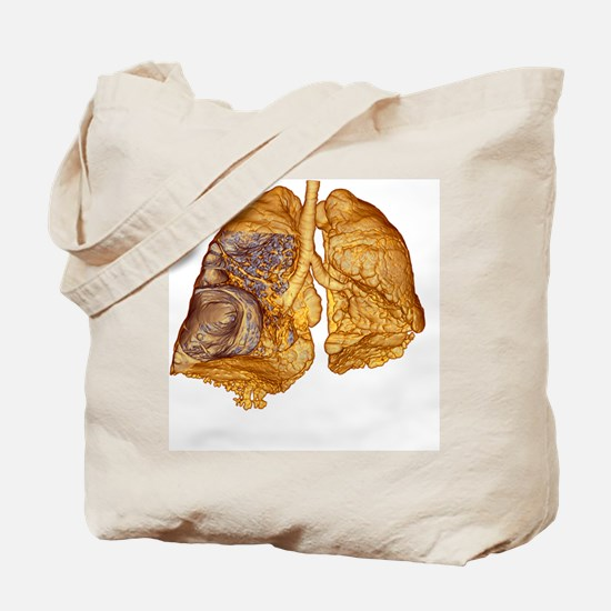 Emphysema of the lungs, CT scan - Tote Bag
