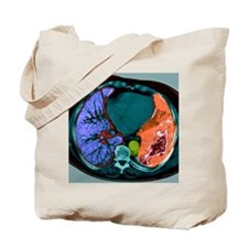 Lung cancer, CT scan - Tote Bag