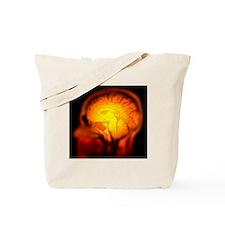 Brain anatomy, MRI scan - Tote Bag