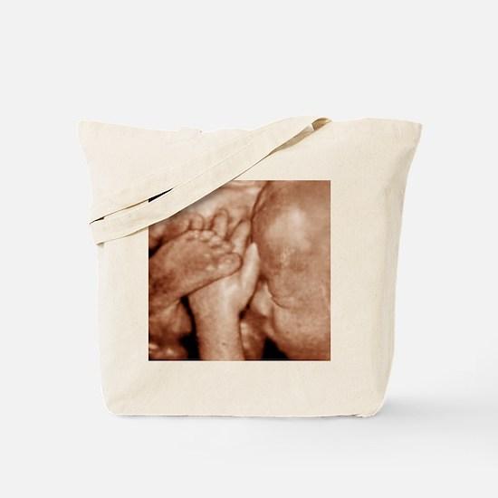 3-D foetal ultrasound - Tote Bag