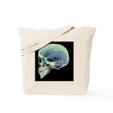 Human skull, X-ray - Tote Bag