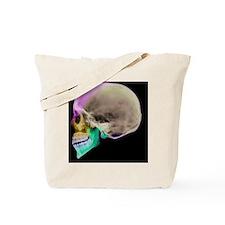Facial nerves, X-ray - Tote Bag