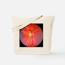 Normal retina of eye - Tote Bag