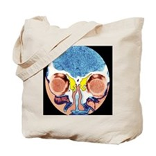 Nose and sinuses, CT scan - Tote Bag