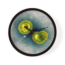 Influenzavirus B, TEM - Wall Clock