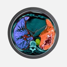Lung cancer, CT scan - Wall Clock