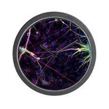 Nerve cell growth - Wall Clock