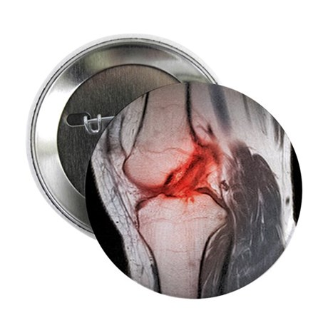 Anterior cruciate ligament tear, CT scan - 2.25