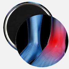 Ankle pain, conceptual artwork - Magnet