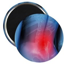 Lower back pain, conceptual artwork - Magnet