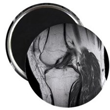 Anterior cruciate ligament tear, CT scan - Magnet